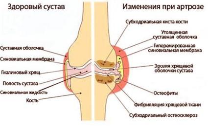 Гонартроз – это заболевание, при котором происходит постепенное истончение и разрушение хряща коленного сустава