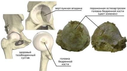 Дефектное изменение приводит к быстрому износу костной структуры