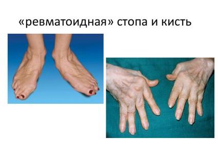 Пораженные конечности ревматоидным артритом