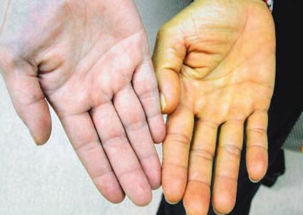 Могут возникать признаки гемолитической желтухи