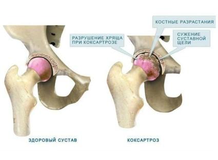 Коксартроз поражает область тазобедренных суставных концов костей, как и остальные виды артроза