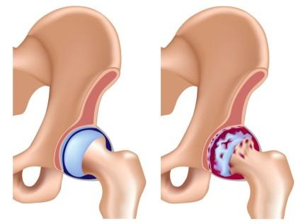 Очень часто дисплазия соединительной ткани тазобедренного сустава приводит к развитию диспластического коксартроза