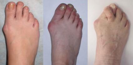 Деформация большого пальца стопы