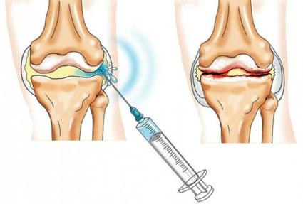Препараты для инъекций назначает лечащий врач
