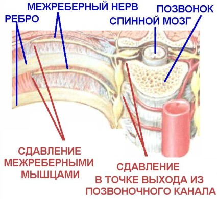 Расположение межрёберного нерва