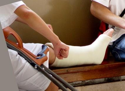 Перелом ноги, наложен гипс