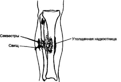 Заболевание кости