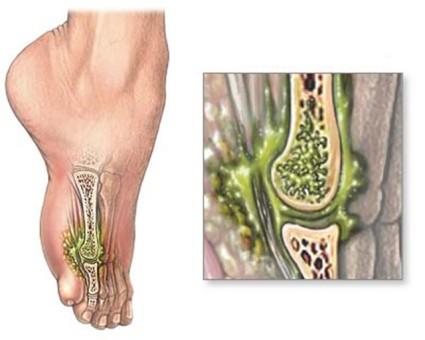 Остеомиелит – инфекционное воспаление кости
