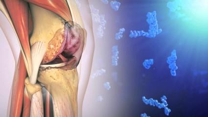 Определить остеоартроз на ранней его стадии помогает томография