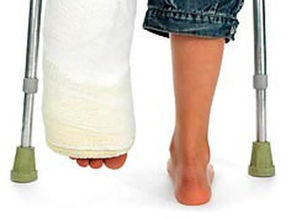 Костную пластику применяют при восстановлении после переломов
