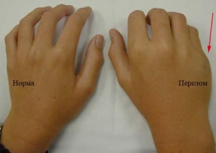 Нормальная рука и с переломом