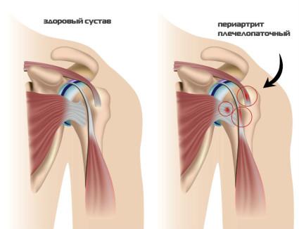 Пораженный сустав периартритом