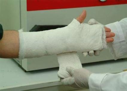 Перелом руки в области запястья