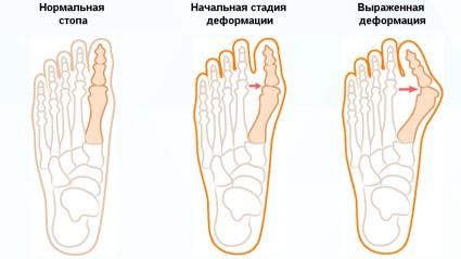 Заболевание имеет первичную и вторичную формы