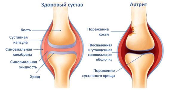 Здоровый коленный сустав и сустав поражённый артритом