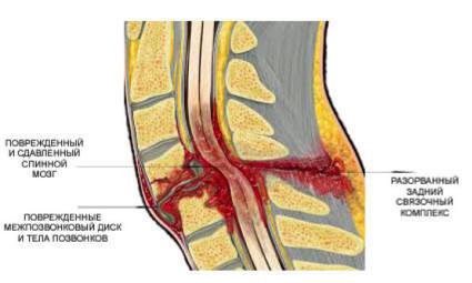 Повреждения позвоночника являются опасными для человека