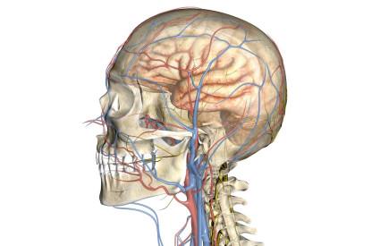 Церебральная дистония подразделяется по нескольким показателям