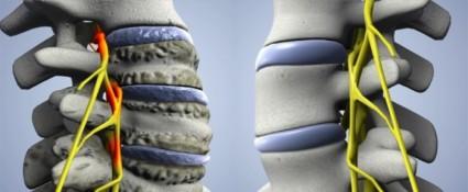 Если не обращать внимания на симптомы болезнь может вызвать сильные осложнения