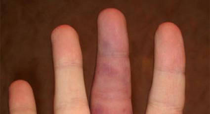 Есть свои особенности и при нарушении целостности костей пальцев