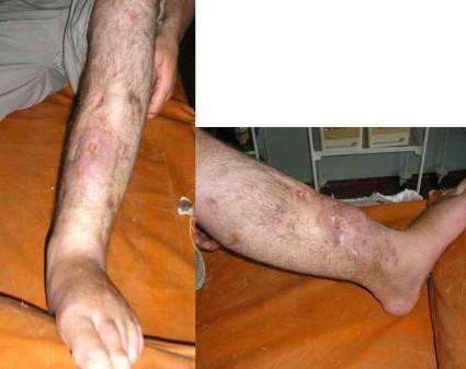 Переломы с наличием смещения можно вовсе не вправлять, их гипсуют и кости срастаются в таком положении, в каком есть
