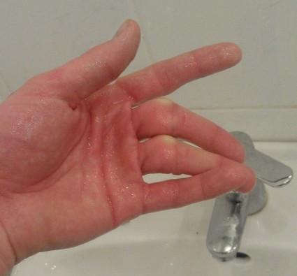 После травмы палец двигается необычно