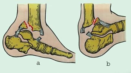 Перелом голеностопного сустава характеризуется болевым синдромом