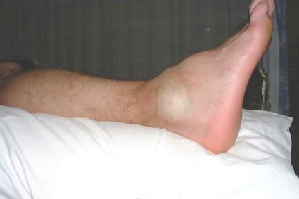 Такое повреждение вызывает падение на стопу или удар по ней