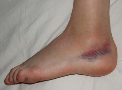 Часто возникает травмирование при падении на согнутые ноги