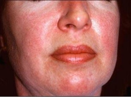 Присоединяются кожные симптомы