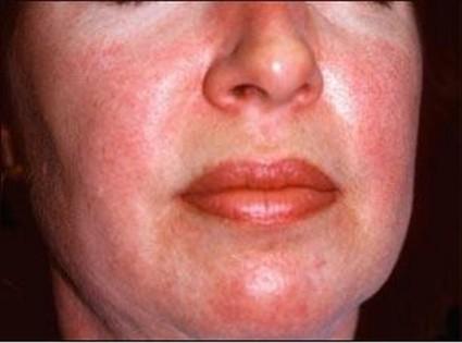 Когда отсутствуют кожные проявления, то это состояние называется полиомиозит