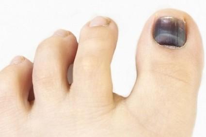 Образовывается небольшая гематома под кожей или ногтем