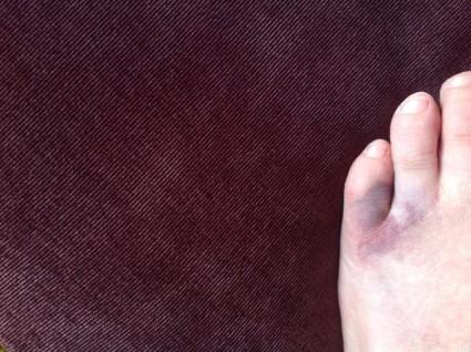 Если возникнут отек и гематома, возможно, человек уже не сможет пошевелить пальцем