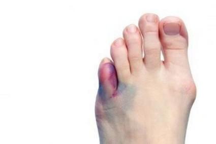 Ушиб пальца представляет собой повреждение мягких тканей фаланги