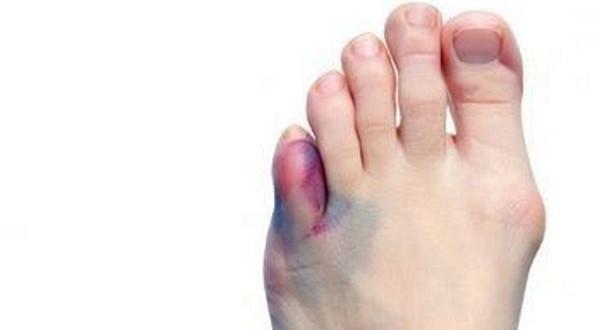Опухоль и грибок на ноге