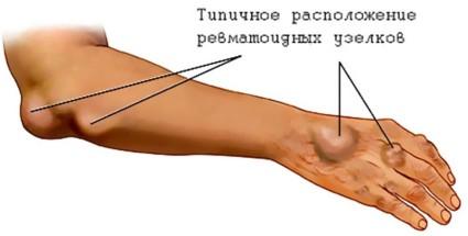 Расположение ревматоидных узелков