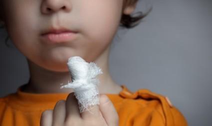 Ушиб характеризуется болью, отёком, синяком или гематомой