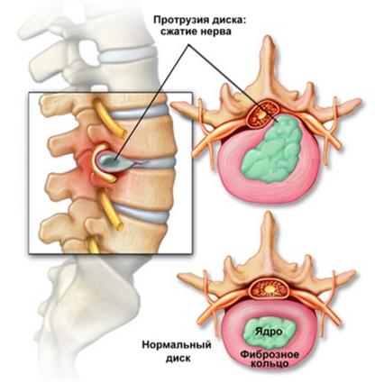 На этом участке часто развиваются протрузии, вызывающие сильные боли