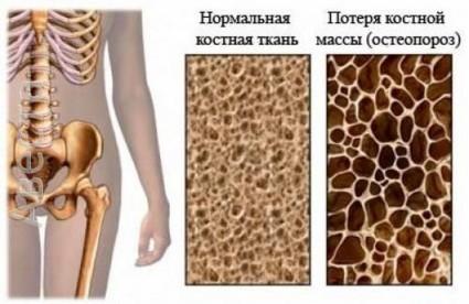 Нормальная костная ткань и пораженная остеопорозом