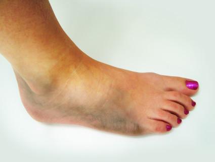 Происходит скопление крови в месте травмы и ее распространение в ткани