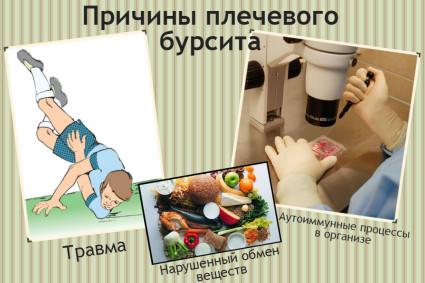 Причины плечевого бурсита