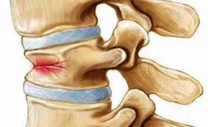 Особенность компрессионного перелома – это сжатие позвонков