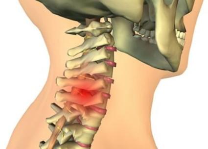 При артрозе шейного отдела наблюдаются боли в области шеи