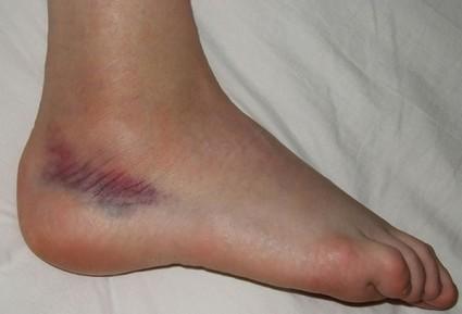 После травмирования возникают симптомы боли