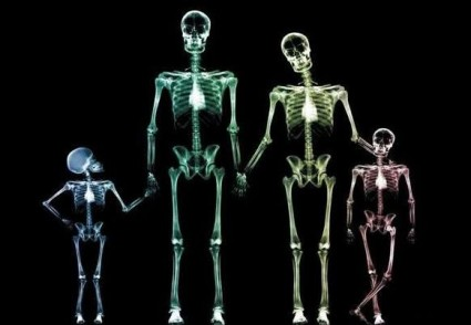На снимках будут видны повреждения сочленения костей и суставов