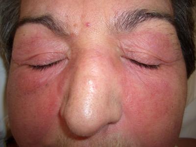 Когда возникает подозрение на ревматоидный артрит или дерматомиозит, выполняется биопсия ткани мышц.