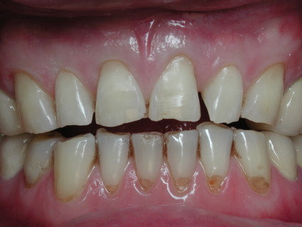Заболевания зубов относятся к патологии, которая сопровождается разрушением костной ткани