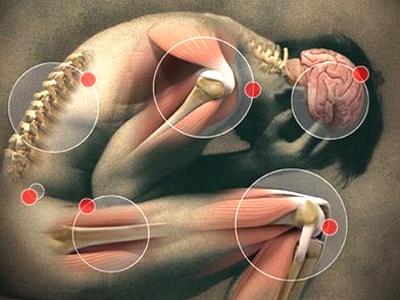 Фибромиалгией чаще всего страдают эмоциональные пациенты