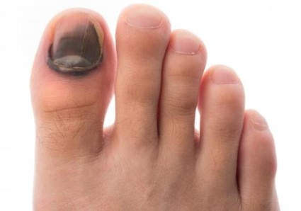 При сильном ударе присутствует боль и синеет ноготь