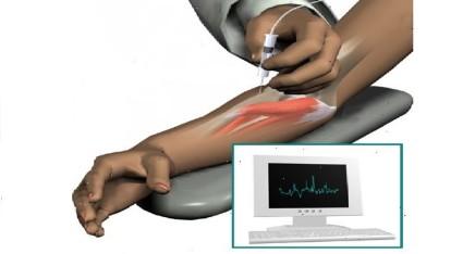 Игольчатая электромиография,позволяет врачу определить, где находится очаг поражения