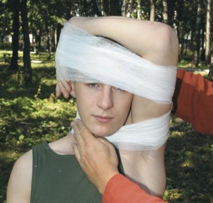 Фиксирующая повязка при переломе шеи